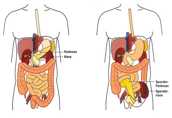 Diabetiker mit Nierenversagen können von einer kombinierten ...
